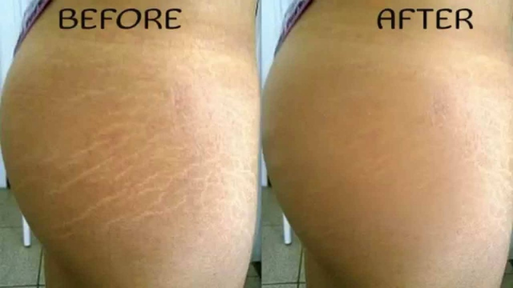 How to Get Rid of Stretch Marks: 5 Effective Home Remedies