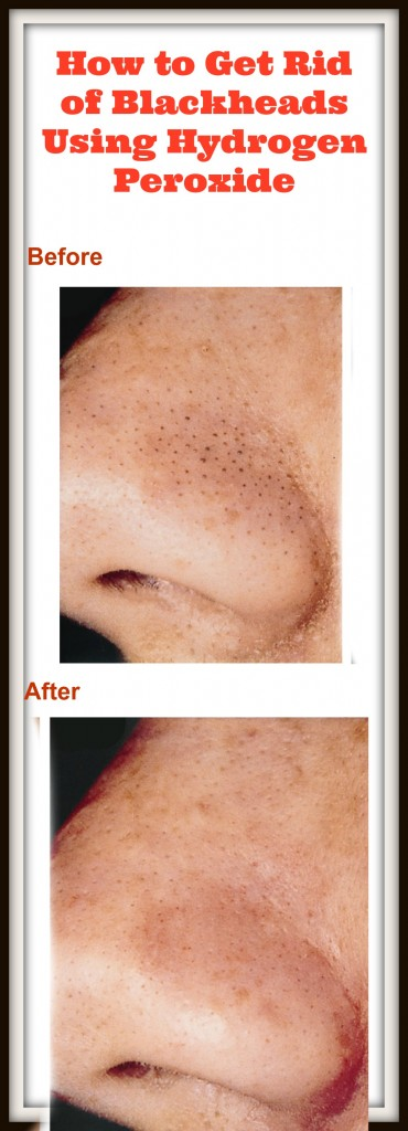 How To Use Hydrogen Peroxide To Get Rid Of Blackheads