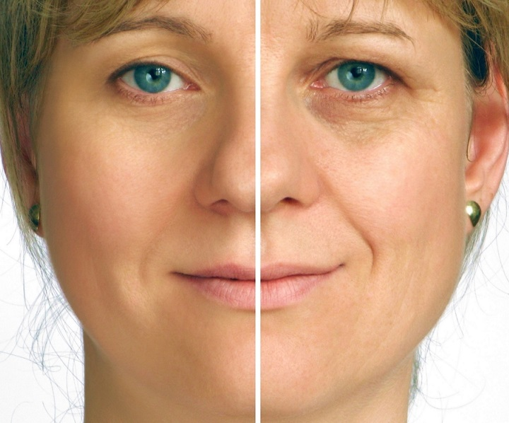 The 5 Minute Face Lift