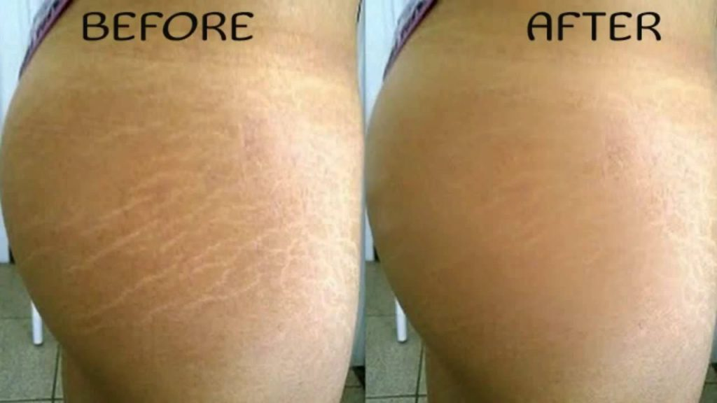 Best Natural Product To Prevent Stretch Marks