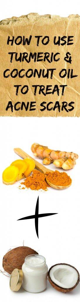 Turmeric & Coconut Oil To Treat Acne Scars
