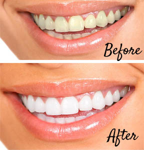 before-and-after-teeth-whitening
