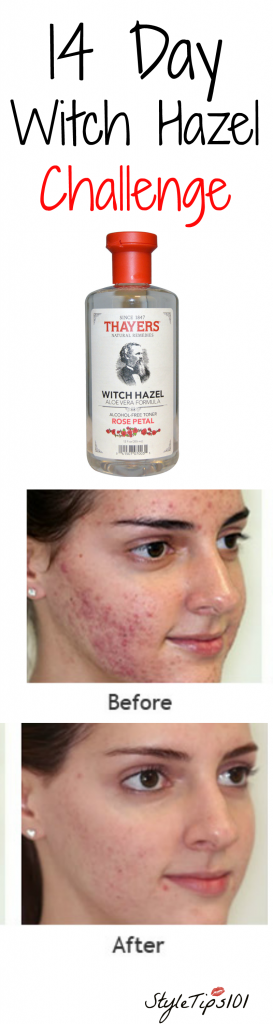 Witch Hazel Challenge