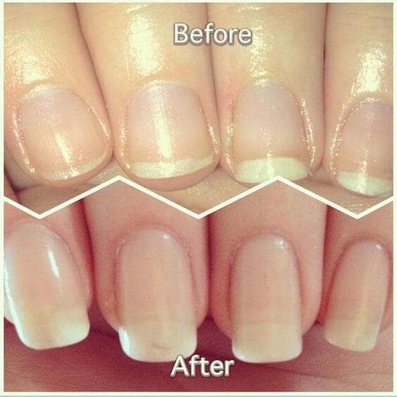 DIY Nail Soak For Longer, Stronger Nails