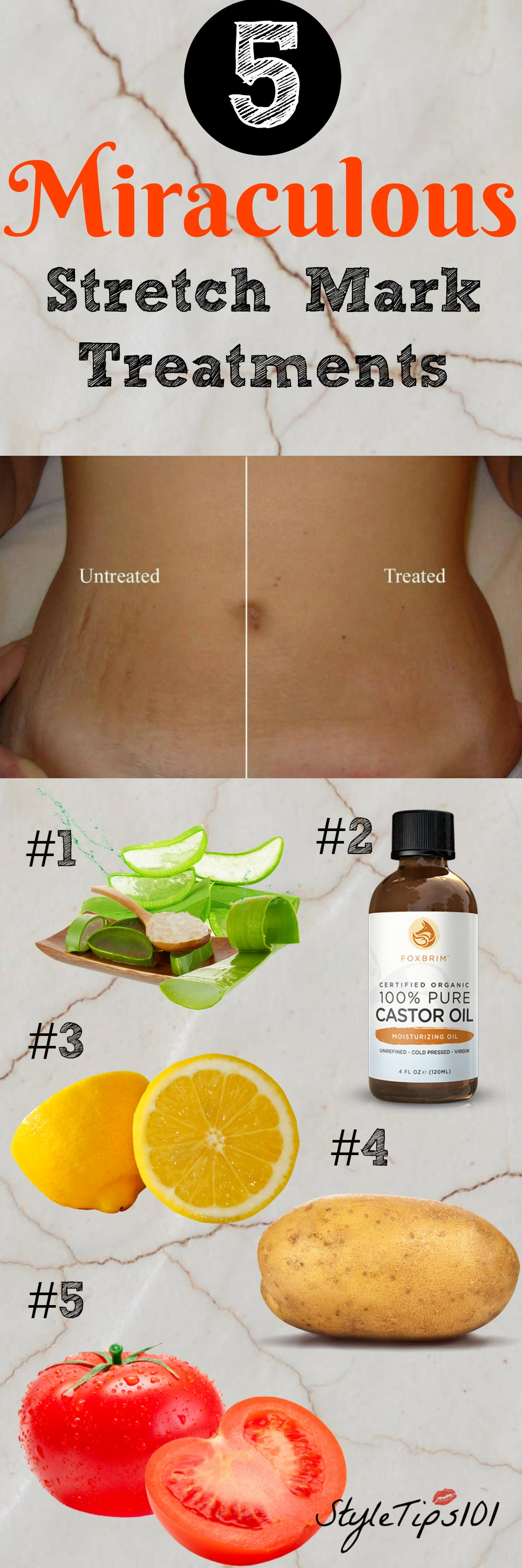 Stretch Mark Remedies