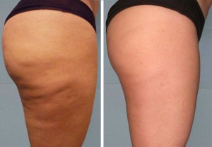 before and after cellulite