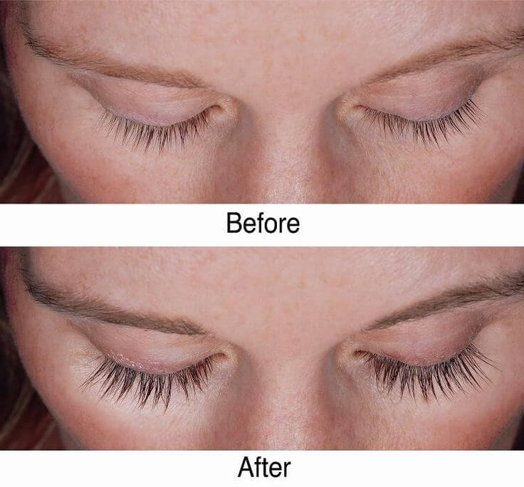 How To Grow Eyelashes A Diy Miracle Serum