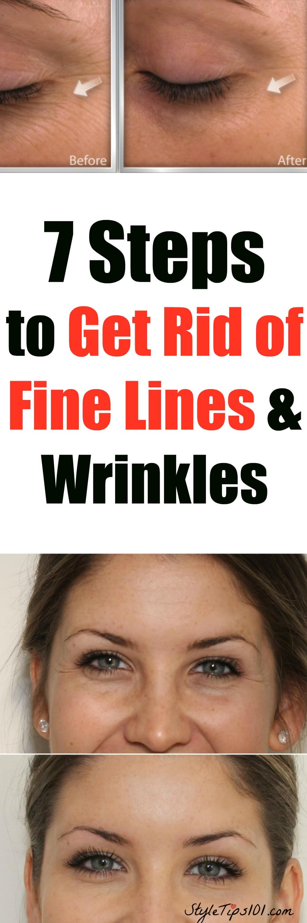 get rid of fine lines