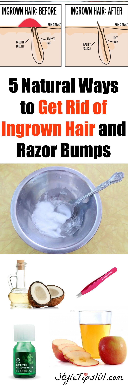 Ways to Get Rid of Ingrown Hair