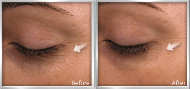 How to Get Rid of Fine Lines Before and After They Appear