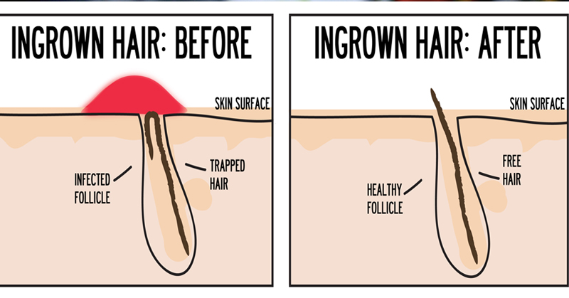 5 ways to get rid of ingrown hair or razor bumps