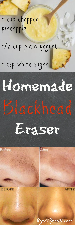 Homemade Blackhead Eraser