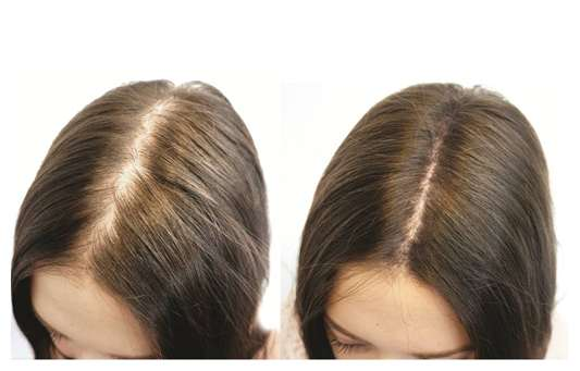 before and after hair growth with onion juice