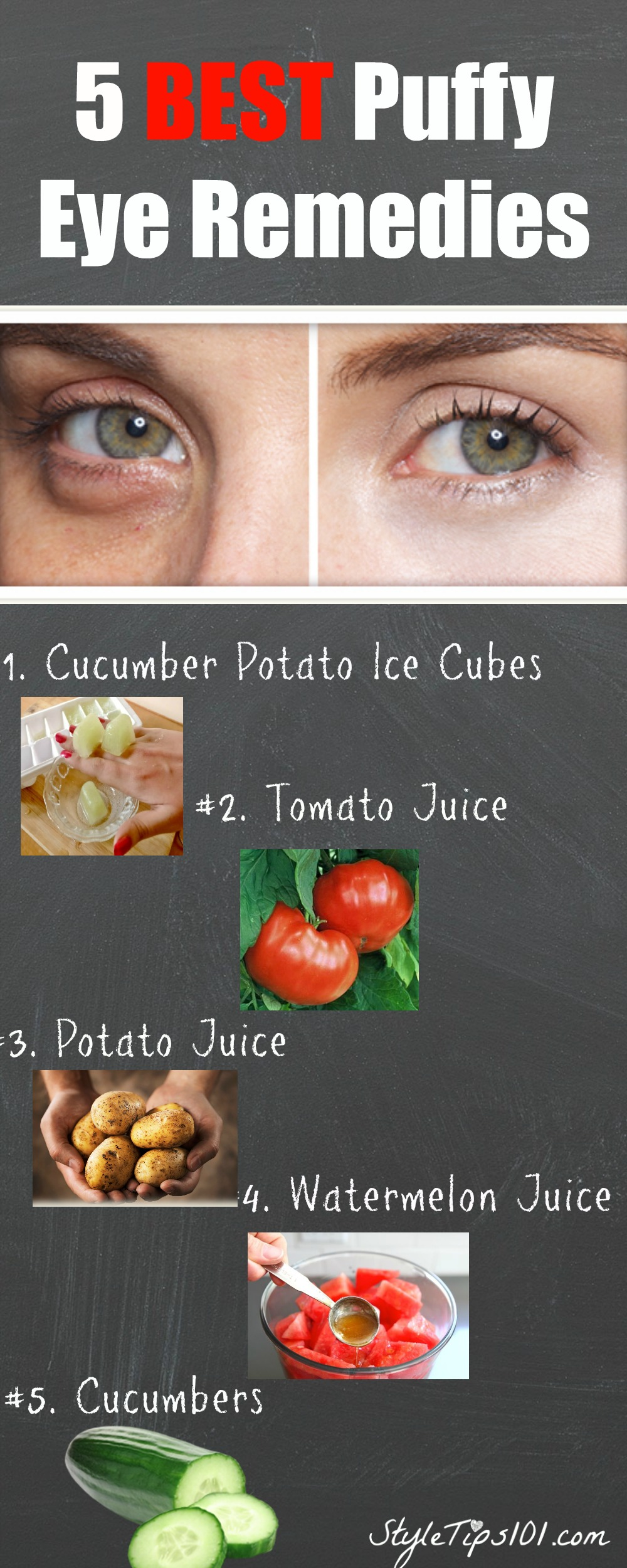 Puff Eye Remedies