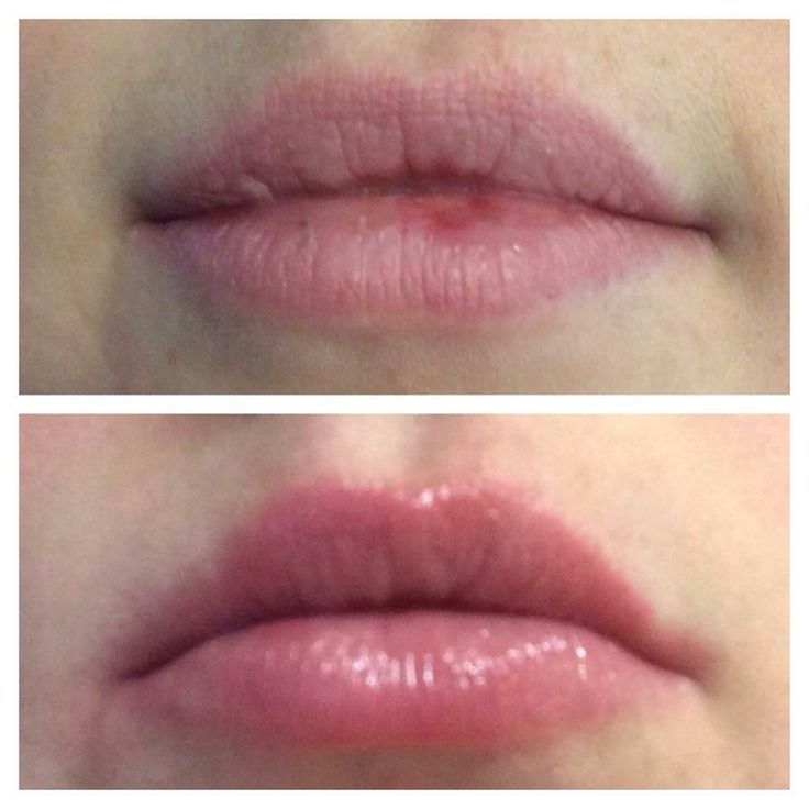 before and after chapped lips
