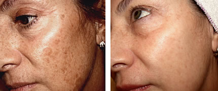 before and after sun damage