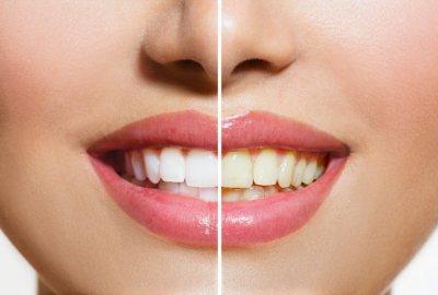 lemon teeth
