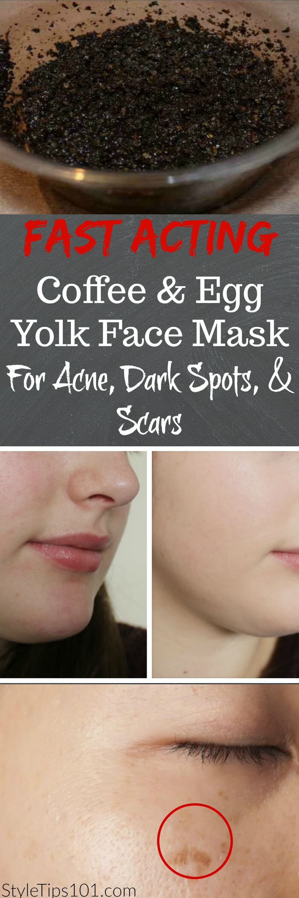 If you have oily and acne prone skin, this egg yolk and coffee face mask will banish blemishes and clear up skin in a very short amount of time.