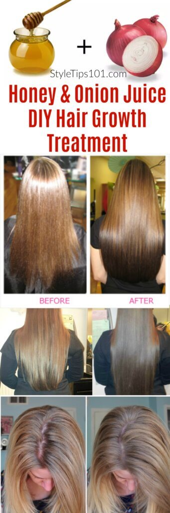 Onion And Honey For Hair Growth Diy Treatment