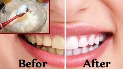 baking soda and lemon for teeth whitening