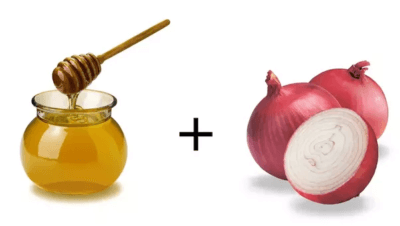 onion juice and honey