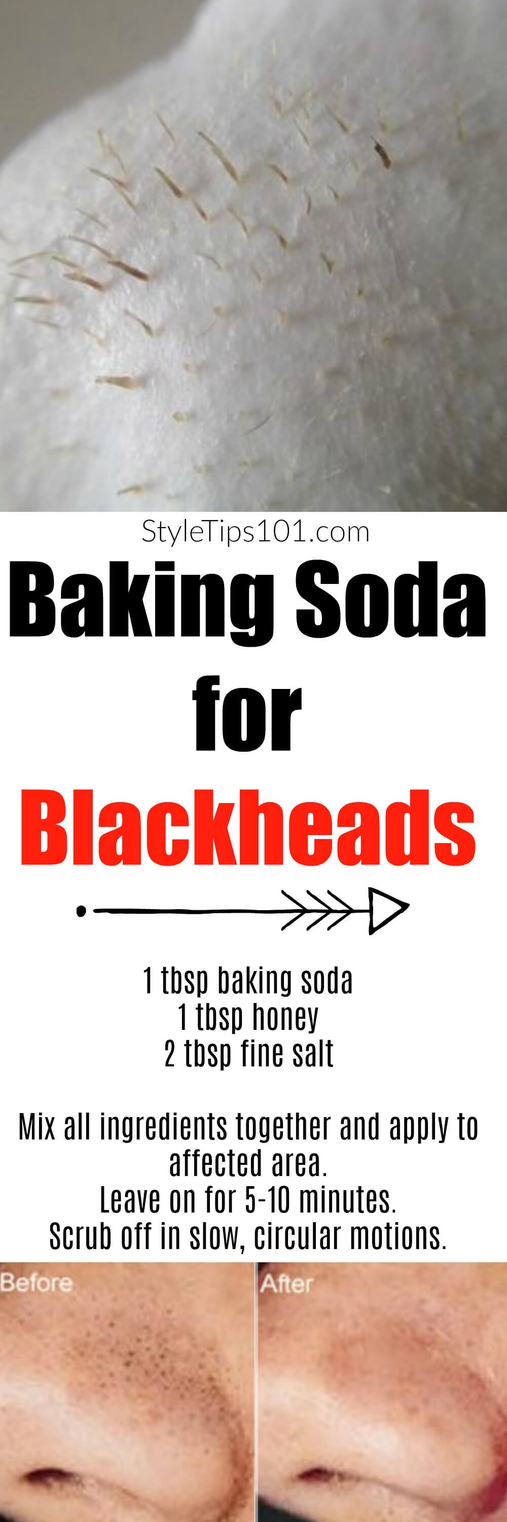 how to use glue for blackheads