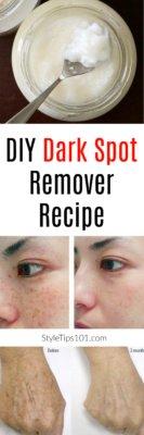 DIY Dark Spot Remover