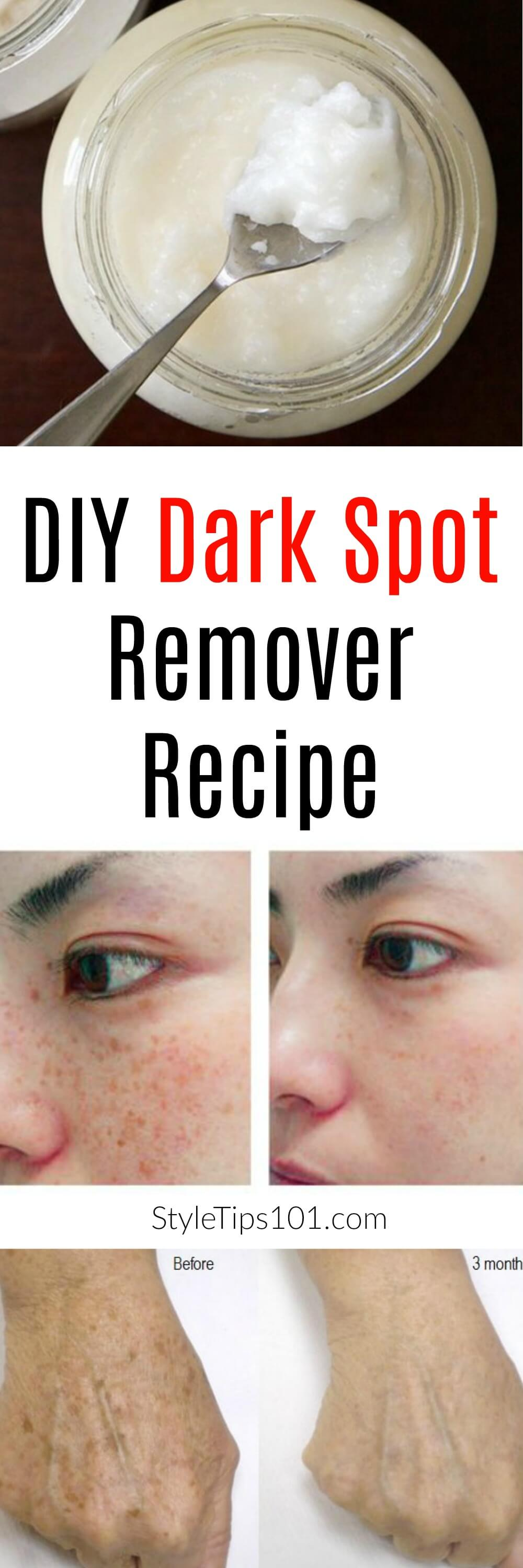 This DIY dark spot remover gel is an amazing alternative to commercial products because it's completely natural and it works just as well!