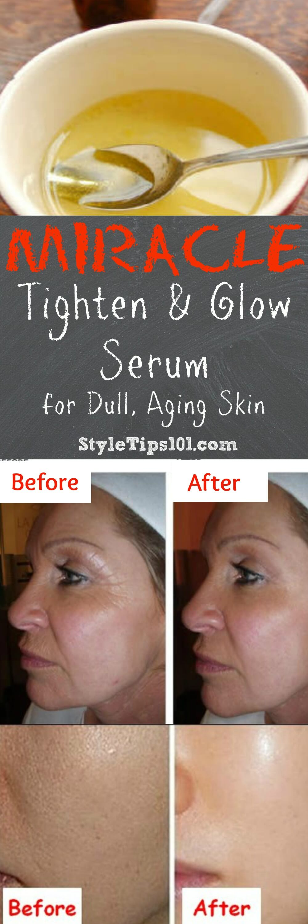 This DIY wrinkle serum with vitamin E will smooth and fill even the toughest and oldest of wrinkles and fine lines. All natural ingredients!
