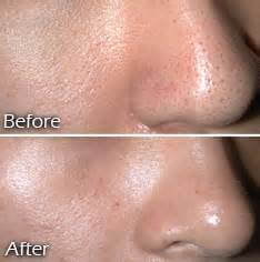 before and after open pores