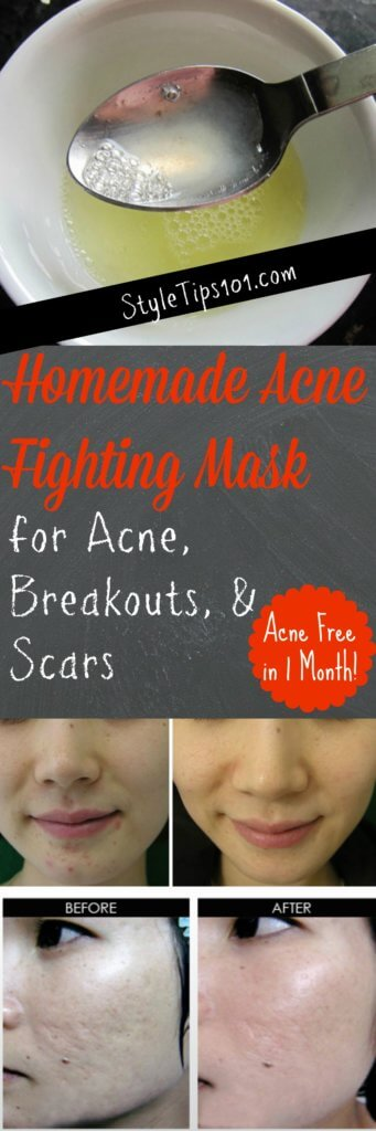 Homemade Acne Fighting Mask