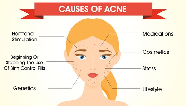 Causes of Acne: Why Do You Get It & How You Can Prevent It