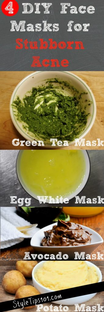 face masks for stubborn acne
