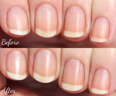 before and after cuticles
