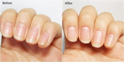 before and after cuticle cream