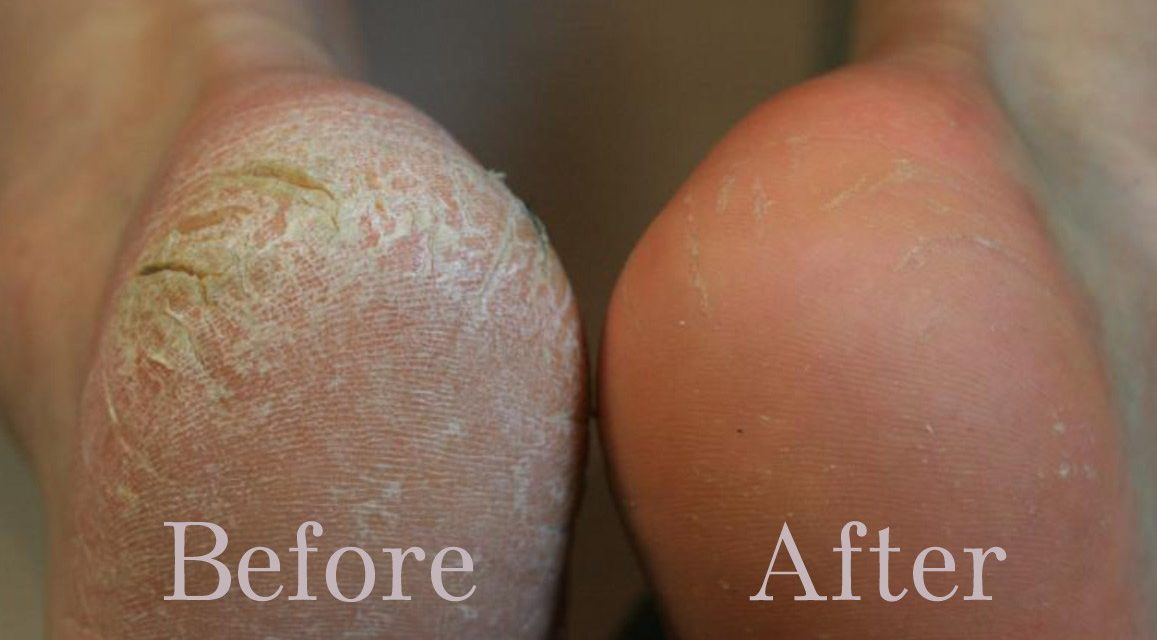 DIY Vinegar Foot Scrub For Dry, Cracked Feet