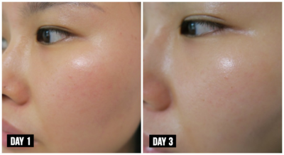 before and after serum