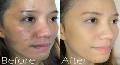 before and after acne face mask