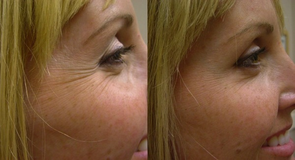 3 Natural Ways to Get Rid of Crows Feet