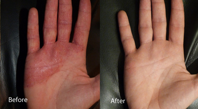 before and after eczema