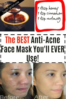 best acne face mask