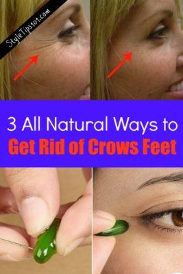 get rid of crows feet