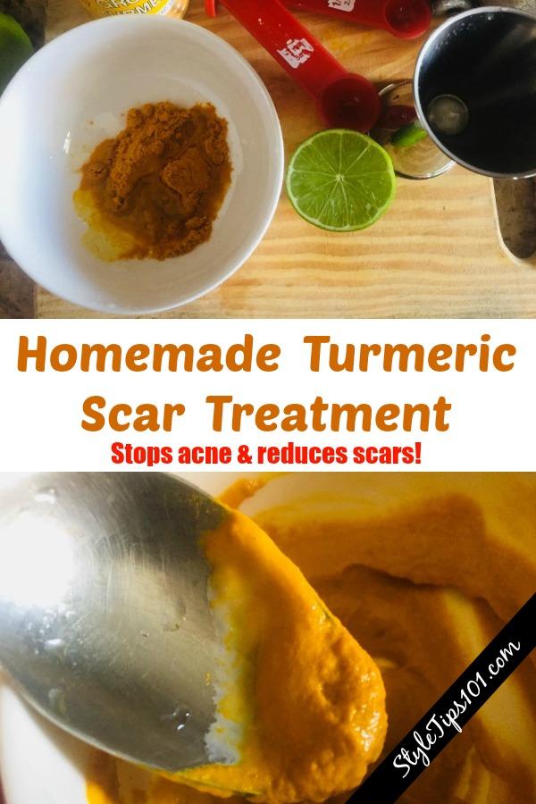 turmeric scar treatment