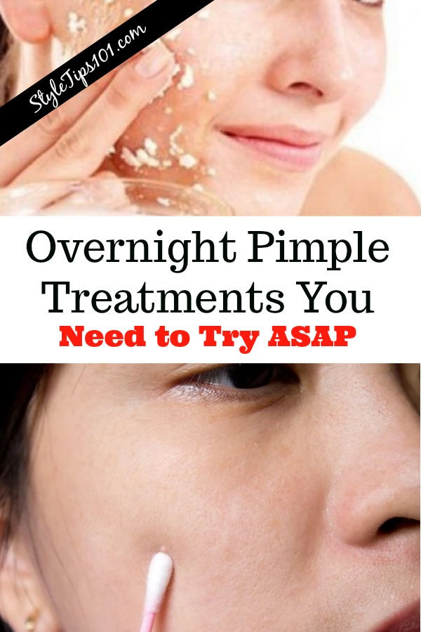 Overnight Pimple Treatments