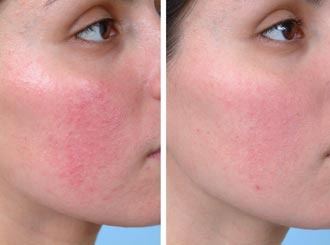 before and after redness