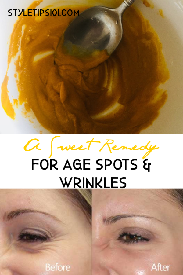 Remedy For Age Spots