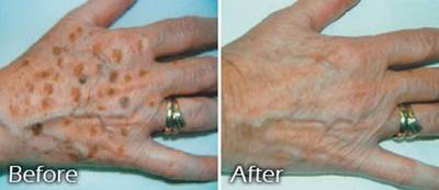 before and after liver spots on hands