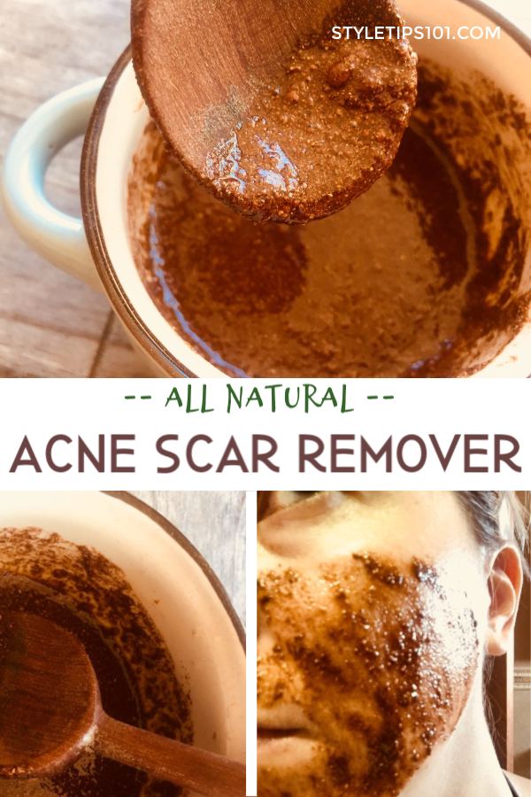 Natural Acne Scar Removal