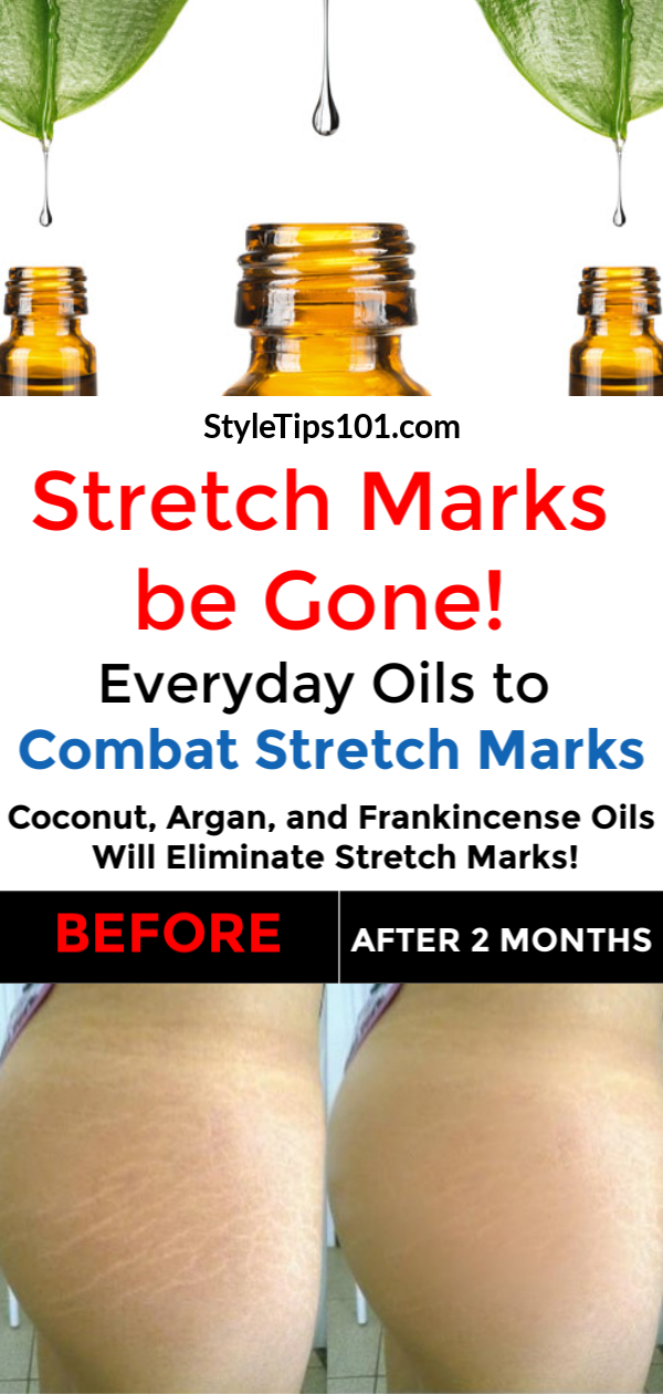 Say goodbye to stretch marks once and for all with these everyday oils to combat stretch marks! All natural, and all 100% effective! #combatstretchmarks #stretchmarksremedies