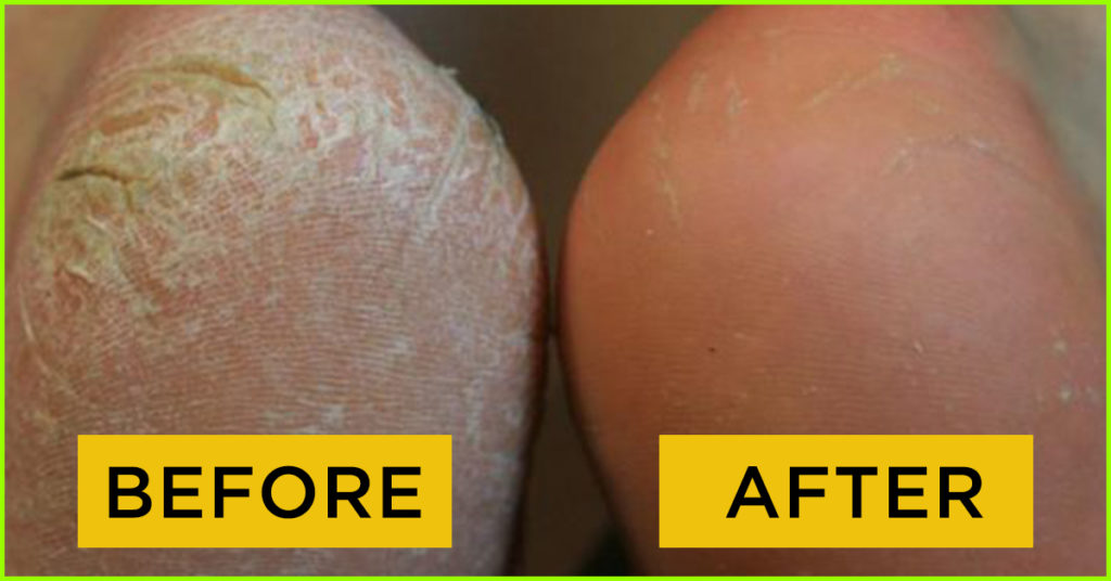 before and after cracked heels